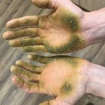 Photo of Robbie's green hands after rubbing the new hop varieties to assess them